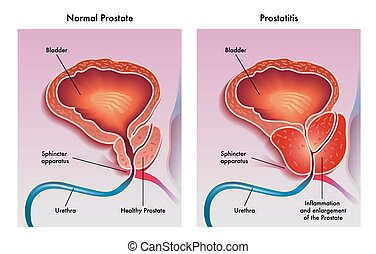 medical illustration of the effects of prostatitis