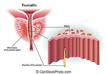 Prostatitis - medical illustration of the effects of...