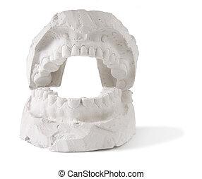 prostesis, של השיניים