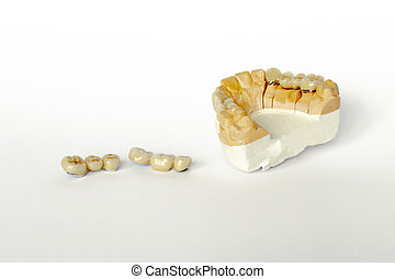 prosthetics for missing teeth. false teeth. ceramic-metal dental bridges. gypsum model of the upper jaw. aesthetic prosthetics. White background