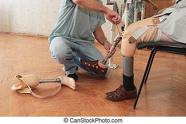 protéza