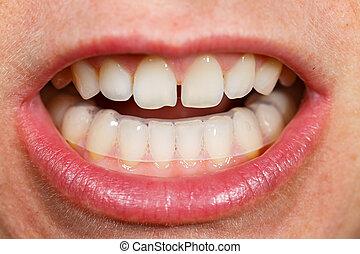 proteger, placa, noche, molienda, dientes, mordedura, boca, ...