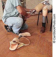 prothèse