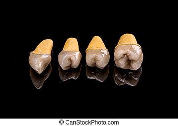 prothétique, dents