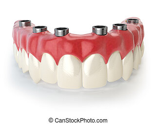 prothesis, stomatologiczny, biały, odizolowany