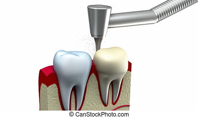 prozess, krone, dental, installation