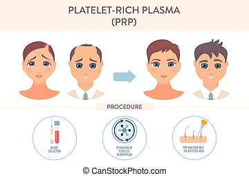 PRP hair loss treatment procedure medical infographic poster