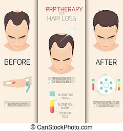 Platelet rich plasma injection. PRP therapy process. Male hair loss treatment infographics. Meso therapy. Hair growth stimulation. Vector illustration.