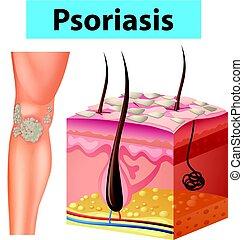 psoriasis, diagramm, ausstellung, menschliche haut