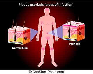 psoriasis, diagramme, projection, plaque, humain