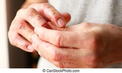 psoriasis, gros plan, peler, doigts, peau, eczema., homme