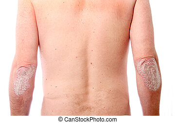 psoriasis on both elbows - pronounced Psoriasis on both...