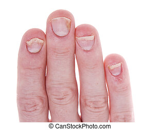 Psoriasis on Fingernails Isolated White Background -...