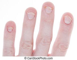 Psoriasis on Fingernails Isolated White Background - Shot of...