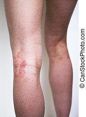 psoriasis, på, ben