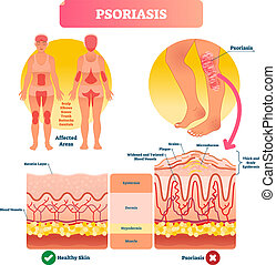 psoriasis, structure., illustration., illness., maladie,...