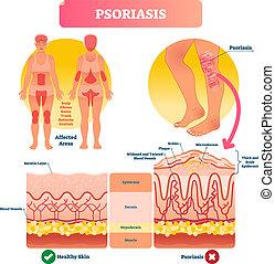 Psoriasis vector illustration. Skin disease and illness....