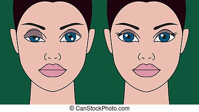 Ptosis of eyelid at woman, asymmetry of eyes, plastic ...