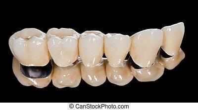 puente, dental, cerámico