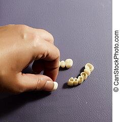 puente, placa, porcelana, (dentistry), coronas, dental