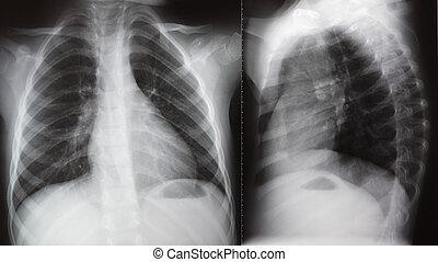 pulmón, radiación, radiografía, pecho