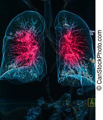 pulmões, raios x, imagem, doença, peito, sob, pulmonar, 3d