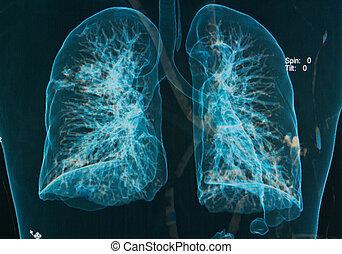 pulmões, raios X, imagem, peito, sob,  3D