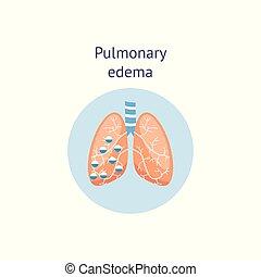Pulmonary edema a lung disease medicine diagram vector ...