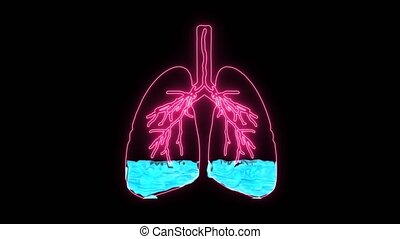 Pulmonary Edema in holographic is a condition caused by abnormal fluid in the alveoli. Resulting in patients with difficulty breathing or lack of breath due to lack of oxygen