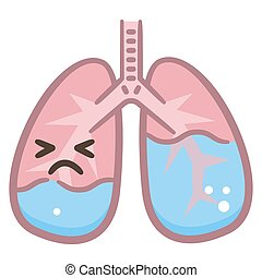 Pulmonary edema lung disease diagram with bronchi and fluid ...