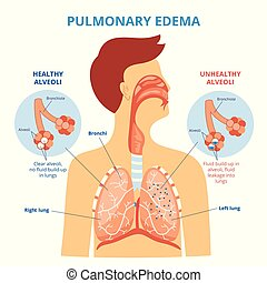 Pulmonary edema - respiratory lung disease infographic with ...