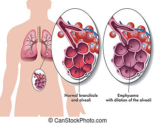 Pulmonary emphysema - medical illustration of the effects of...