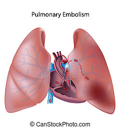 pulmonary, eps10, embolie