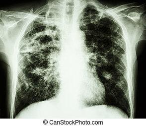 pulmonary, tuberculose