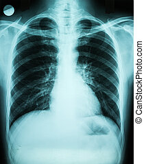Pulmonary X-Ray Of Patient Lungs