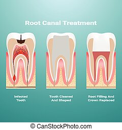 Pulpitis. Root Canal Therapy. Infected Pulp Is Removed From The Tooth And The Space Occupied By It Is Cleaned And Filled With A Gutta Percha Isolated On A Background. Vector Illustration.