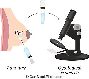 Puncture of cysts in the breast. Cytological analysis. Biopsy. Histological examination. Infographics. Vector illustration