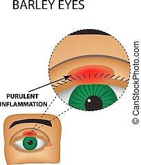 purulent, inflammation., 隔離された, イラスト, infographics., ベクトル, 大麦, 背景, eyes., 構造, eye.