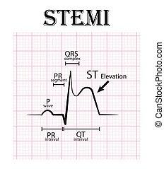 qt, pr, ecg, pectoris, 片断, 梗塞, 综合症, 升级, t, qrs, 尖锐, 波浪, ), 冠, p, (, st, 提高, 心绞痛, 间隔, stemi, 复杂, 心肌, 细节