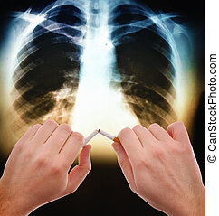 Quit smoking - Hands breaking a cigarette in front of the x ...