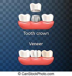 réaliste, dentaire, illustration, dent, couronne, venner