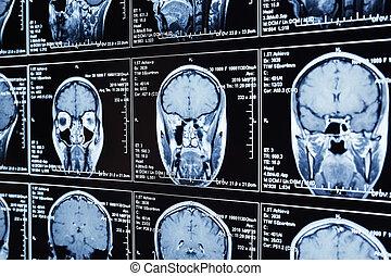 résonance, magnétique, mri, brain., balayage, tête