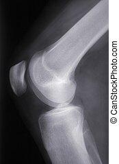 röntga, knä, sideview