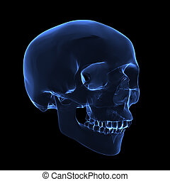 röntga, kranium