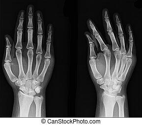 röntgen, sok, /, másikak, kéz