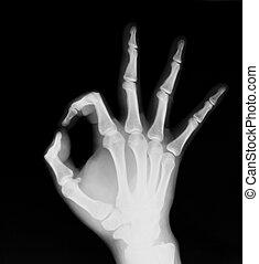 röntgenaufnahme, beide, (ok!), menschliche hand