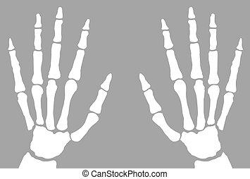röntgenaufnahme, hände