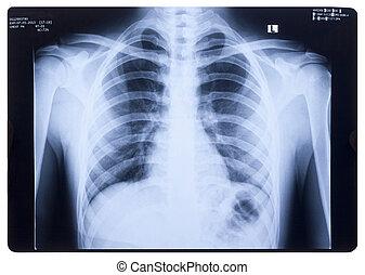 röntgenaufnahme, menschliche brust