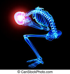 röntgenaufnahme, schwarzer mann, schmerz, gehirn