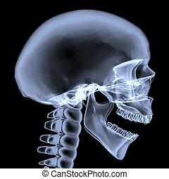 röntgenaufnahme, skull., seitenansicht, menschliche